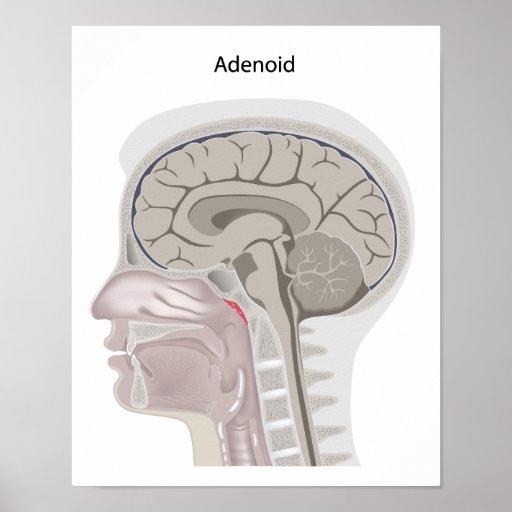 Adenoid location in the head Poster | Zazzle