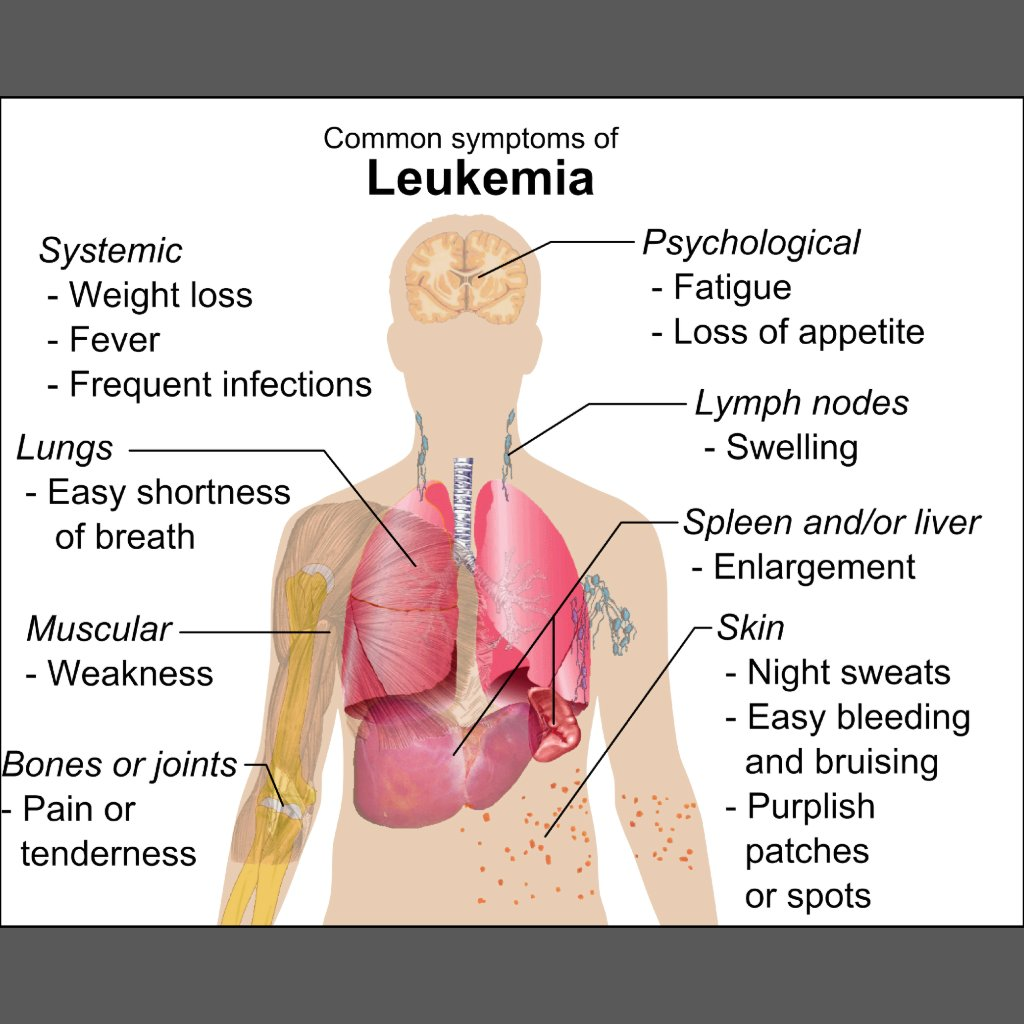 images of adult with leukemia jpg 853x1280