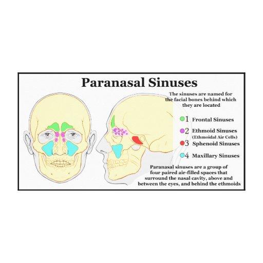 Diagram of Human Paranasal Sinuses Gallery Wrap Canvas ...